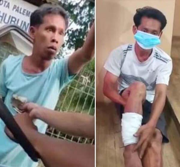 Pemalak Galak Sama Sopir, Ketemu Polisi Sok Melawan, Kakinya Kini Dibalut Perban - JPNN.com