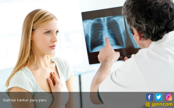 perlukah-perokok-pasif-rutin-cek-kesehatan-paru