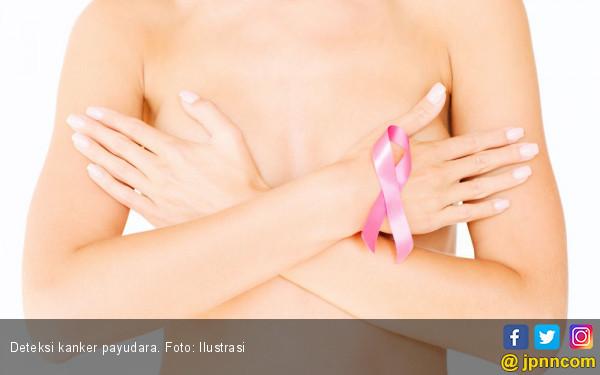 4 Hal ini Bisa Meningkatkan RIsiko Kanker Payudara - JPNN.COM