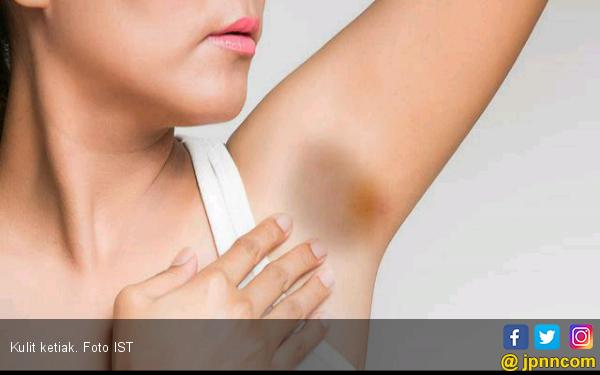 Menggunakan Deodoran Bisa Sebabkan Kanker?