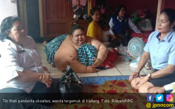 Pakar Gizi Ungkap Pemicu Obesitas Yang Dialami Titi Wati Jpnn Com