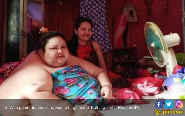 Gaya Hidup Kekinian Picu Peningkatan Penderita Obesitas di Indonesia
