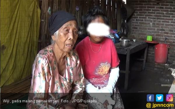 Stres, Gadis Ini Makan Jarinya Sendiri - JPNN.com