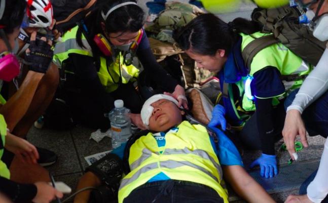 Kabar Terbaru Wartawan Indonesia yang Tertembak Saat Liput Demo Hong Kong - JPNN.com