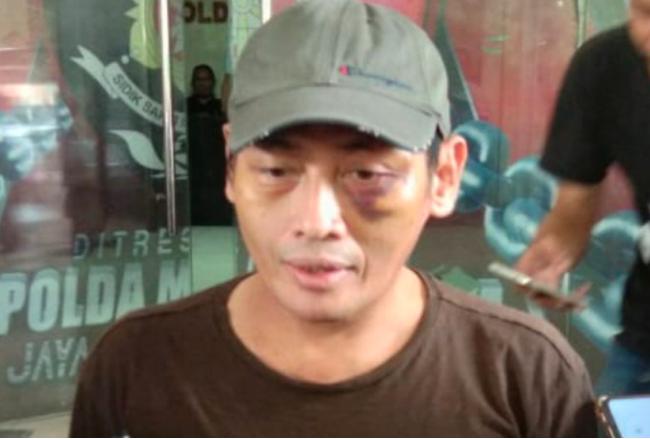 Detik-detik Ninoy Karundeng Diculik, Dihajar, Diinterogasi dengan Kata-kata Mengerikan - JPNN.com