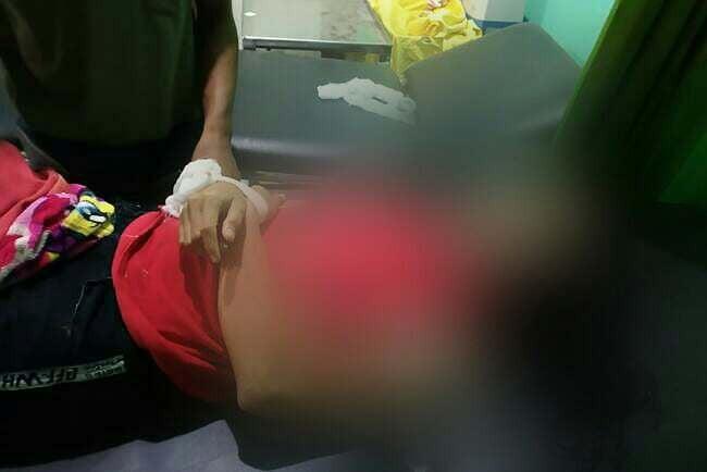 Berita Terbaru Soal Biduan Organ Tunggal Tewas Dikeroyok dan Dilempari Batu - JPNN.com