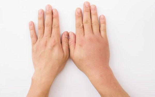 Kenali 5 Penyebab Jari Tangan Membengkak