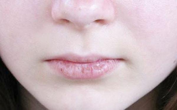 Kenali Penyebab Bibir Pecah-pecah dan Cara Mengobatinya