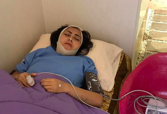 Rency Milano Jadi Korban Malapraktik Klinik Kecantikan, Elma Theana: Dagunya Keluar Nanah dan Bengkak - JPNN.com