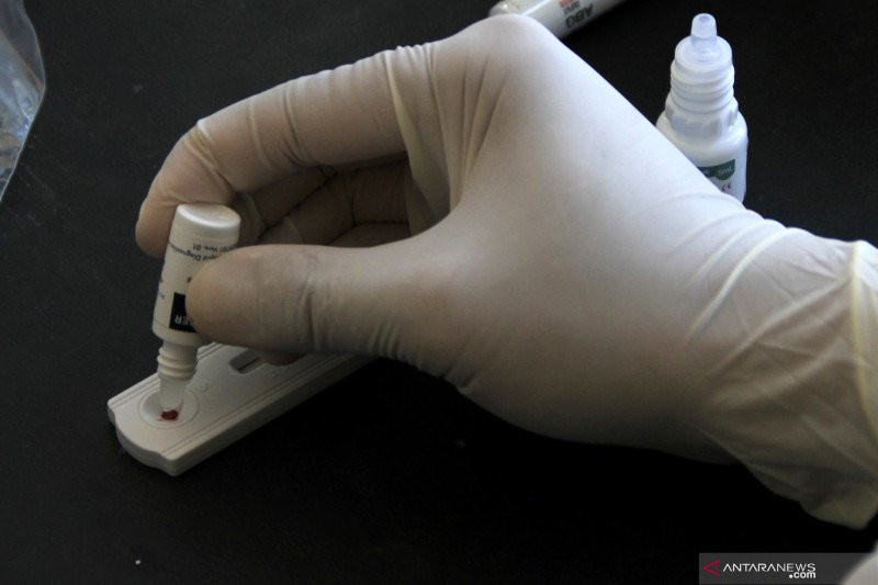 Hasil Penelitian: Orang Berdarah O dan B Lebih Tahan COVID-19 - JPNN.com
