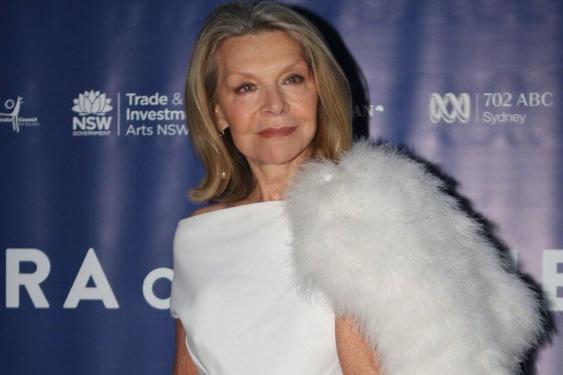 Ikon fesyen Australia Meninggal dunia Setelah Terjatuh - JPNN.com
