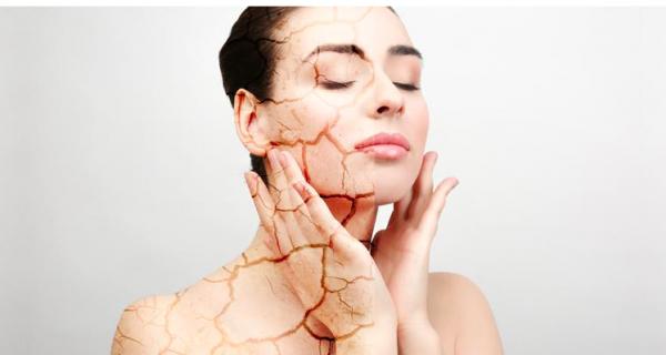 Rahasia Aplikasi Makeup pada Kulit Kering Agar tidak Crack - GenPI.co