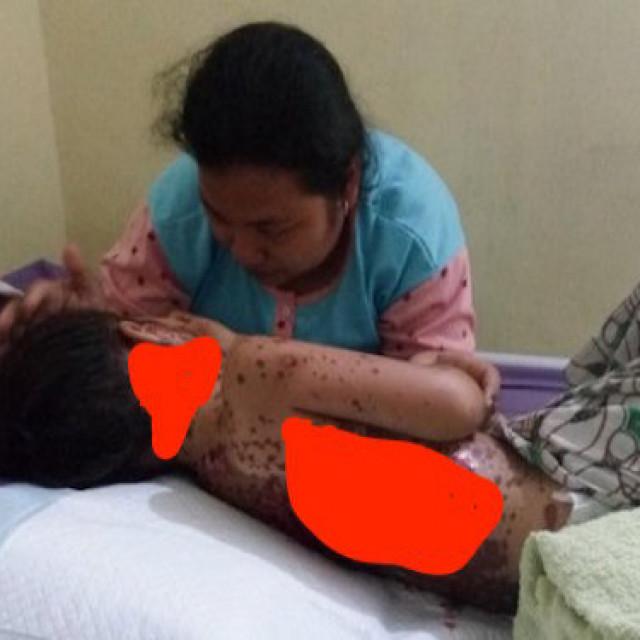 Gambar Obat Demam Resep Dokter