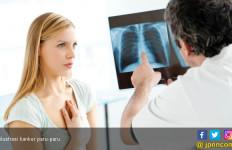 7 Kiat agar Wanita Terhindar dari Kanker Paru - JPNN.com