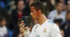 Real Madrid Pesta Gol, Cristiano Ronaldo Berdarah - JPNN.COM