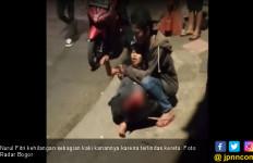 Kaki Kanan Wanita Ini Putus Usai Terlindas Kereta Jurusan Sukabumi–Bogor - JPNN.com